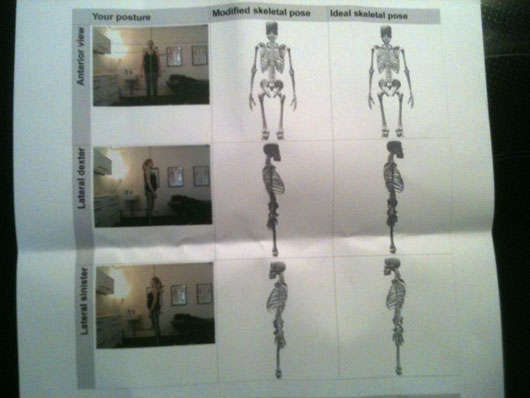 Det är jag på fotona samt skelettbilderna i mittersta kolumnen. Till höger är referensskelettet.